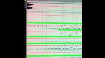 Deniz Koyu ft. Wynter Gordon – Follow You [Ableton remake]